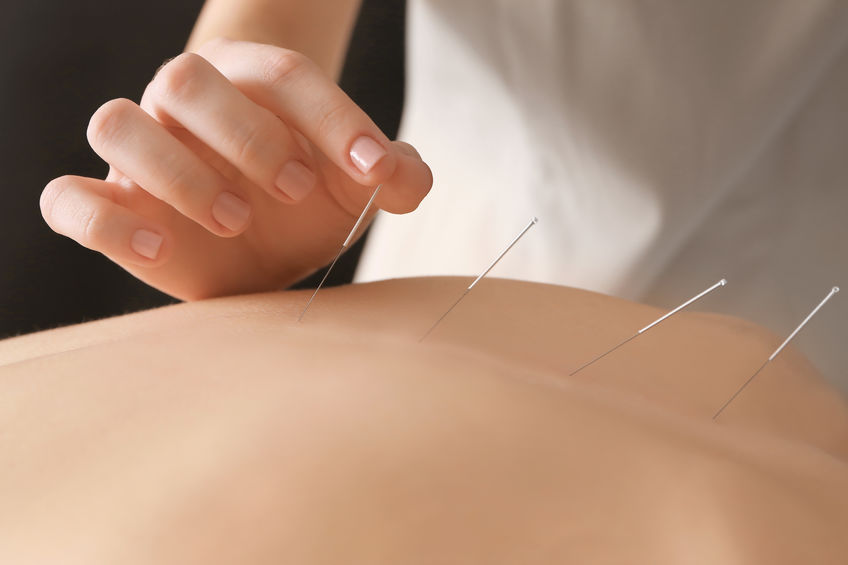 dry needling in back